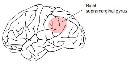 r sup marginal gyrus